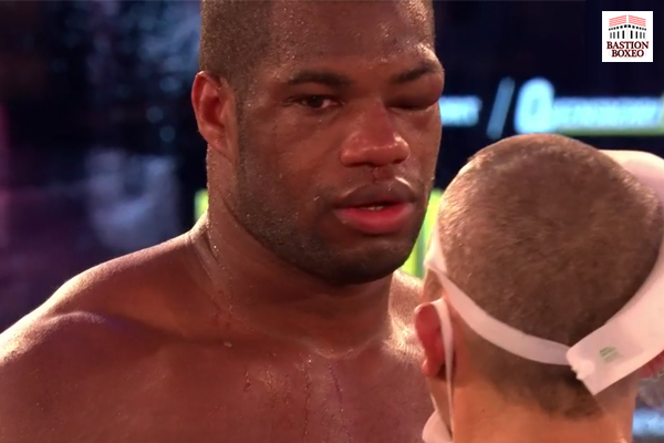"""Dubois sobre Saunders: """"Quizás podamos crear un vínculo por ello. Los boxeadores pueden llevarse bien"""""""